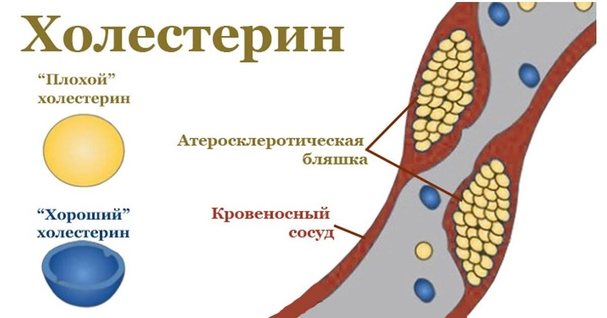 3 рецепта из овсянки, которые помогут снизить уровень холестерина в крови