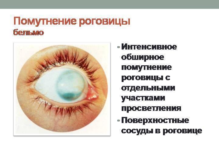 Бельмо на глазу у собаки: лечение, фото, признаки и симптомы лейкомы