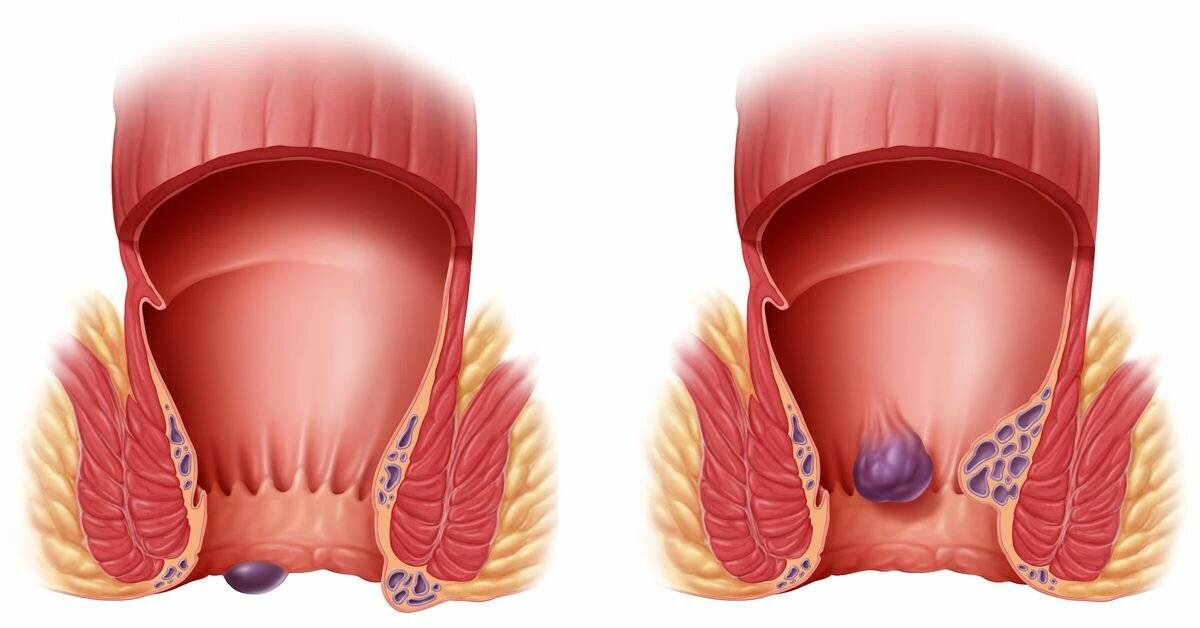 Тромбоз геморроидального узла лечение в домашних условиях