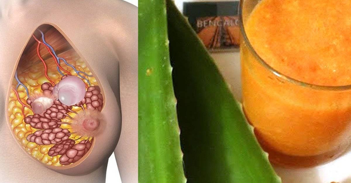 Фиброзно-кистозная мастопатия: лечение народными средствами с помощью трав и сборов