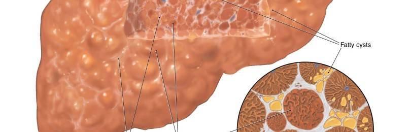 Асцит при циррозе печени: сколько живут с этой патологией