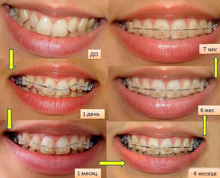 Болят зубы с брекетами, что делать   как снять боль от брекет-системы 8 советов