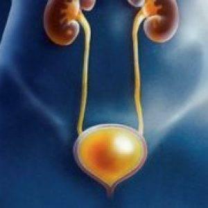 Лучевой цистит – причины, симптомы, диагностика и лечение