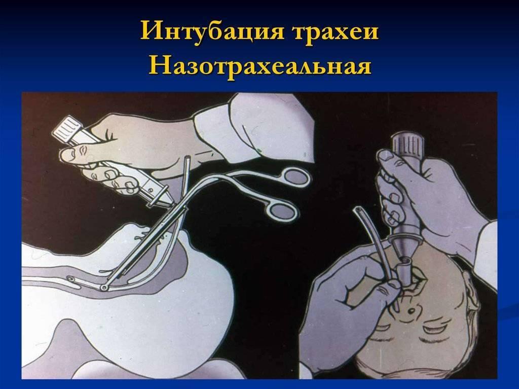Эндотрахеальный наркоз | все о наркозе и анестезии