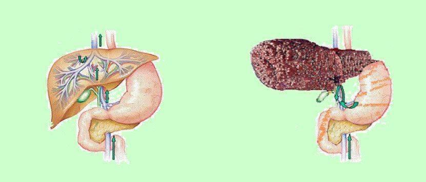 Что такое портальная гипертензия печени и ее лечение