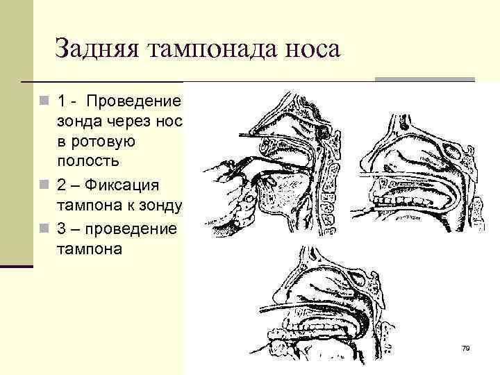 Используем ватные турунды от гайморита. турунды в ухо: как сделать, с чем применяют, правила использования как правильно делать турунды в нос