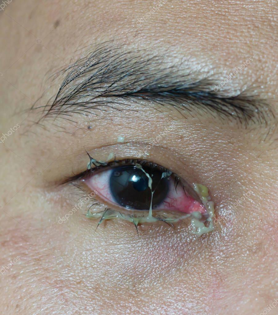 Почему болят глаза больно моргать