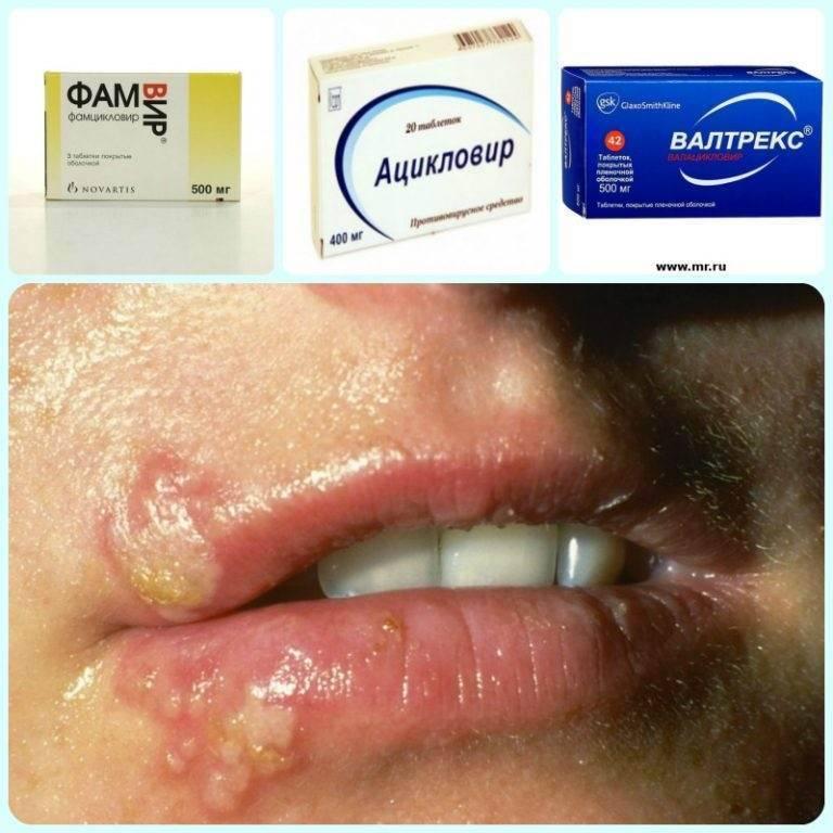 лекарство от герпеса на губах в таблетках