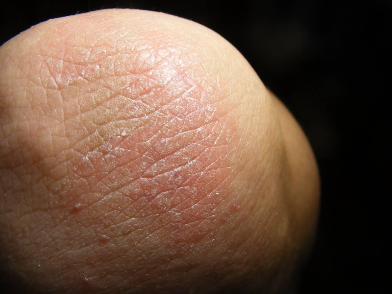 Фрикционный дерматит на локтях