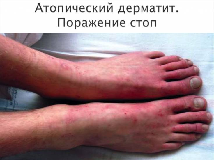 Dieta-dlya-rebenka-pri-atopicheskom-dermatite - запись пользователя наталия (alisaf) в сообществе детские болезни от года до трех в категории аллергия - babyblog.ru
