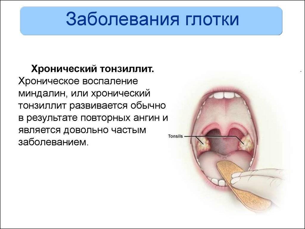 Как проявляется и лечится воспаление носоглотки?