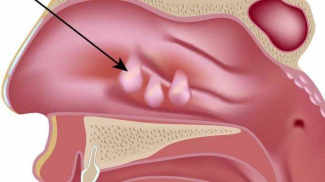 Лечение полипов в носу