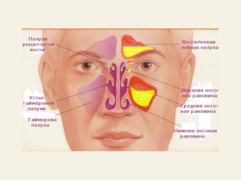 Гайморит. причины, симптомы, современная диагностика и эффективное лечение болезни.