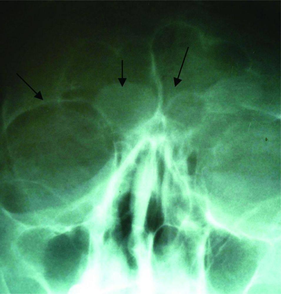 киста лобной пазухи операция