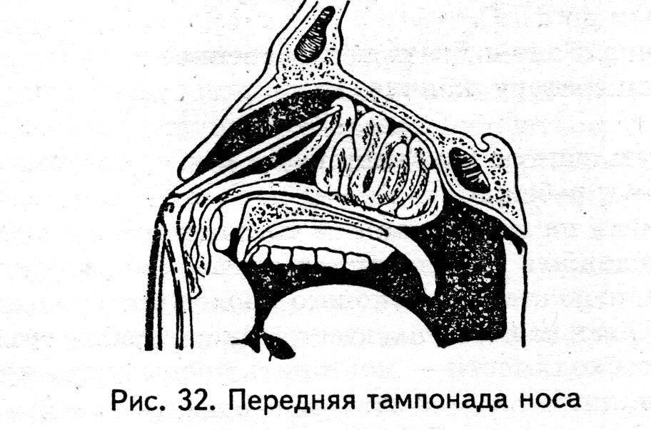 Тампонада носа – передняя и задняя