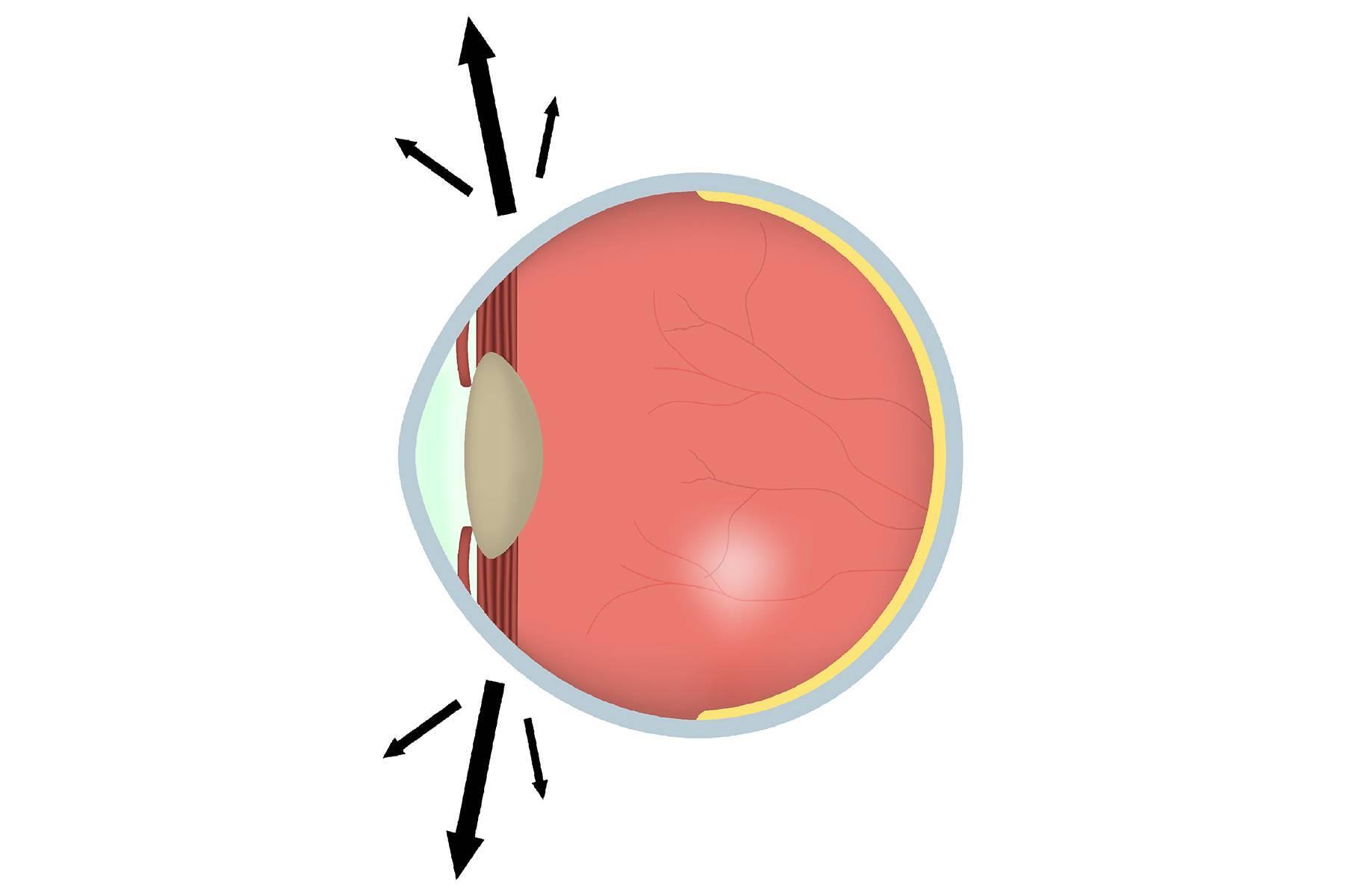 Нистагм глаз – лечение, причины, виды, симптомы, диагностика