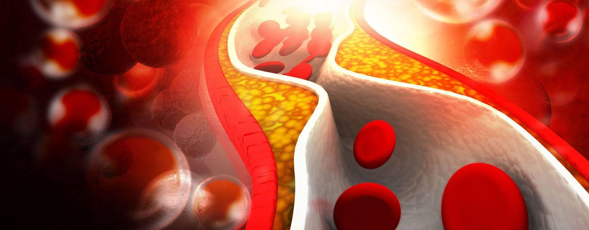 Почему при сахарном диабете повышен холестерин — диабет и всё о нём