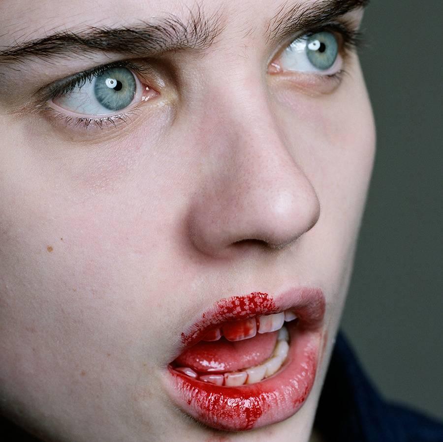 Боязнь крови (гемофобия): что это такое, причины, как перестать бояться