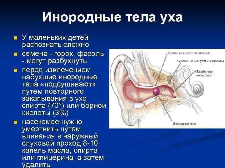 как достать инородное тело из уха