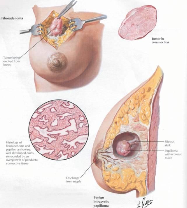фиброаденоматоз молочной железы что это такое как лечить