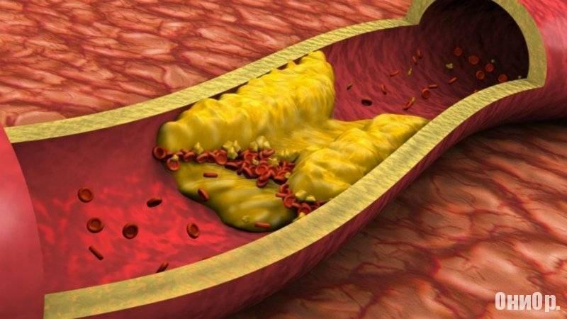 Холестериновые бляшки — причины, лечение и профилактика