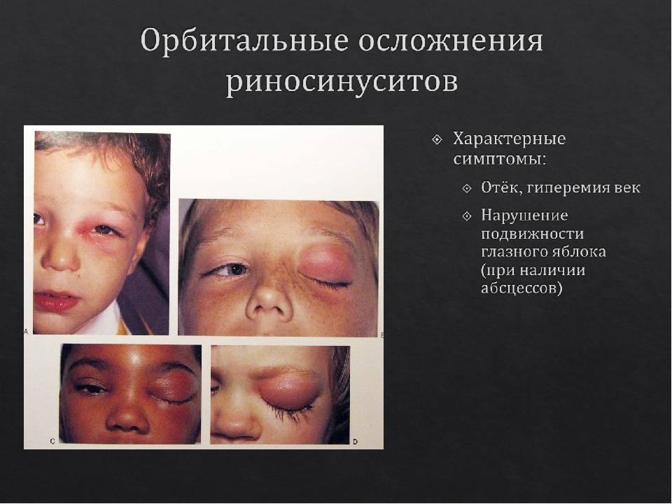 заболевание носа у детей