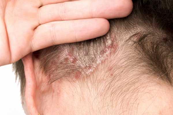 Внешний вид и эффективное лечение дерматита на голове