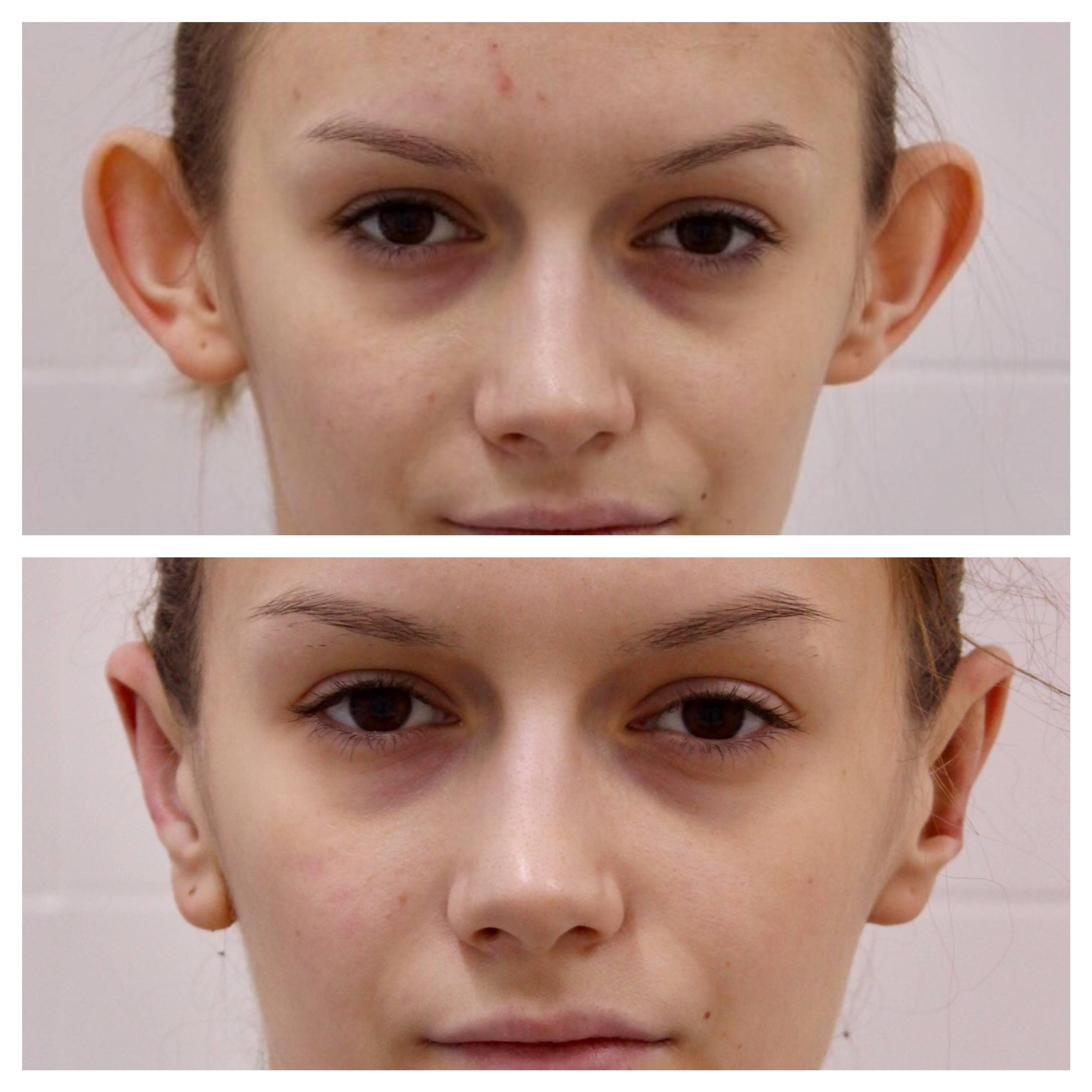 Можно ли избавиться от лопоухости. лопоухие уши – как исправить без операции в домашних условиях. операция по устранению лопоухости