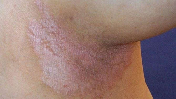 Как лечить дерматит наружных половых органов