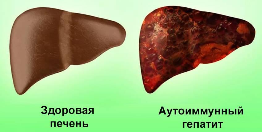Фульминантный гепатит печени: что это такое, симптомы и лечение