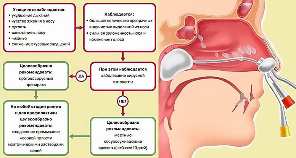 симптомы при рините