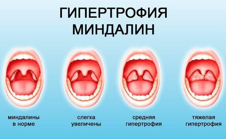 гипертрофия небных миндалин у детей лечение