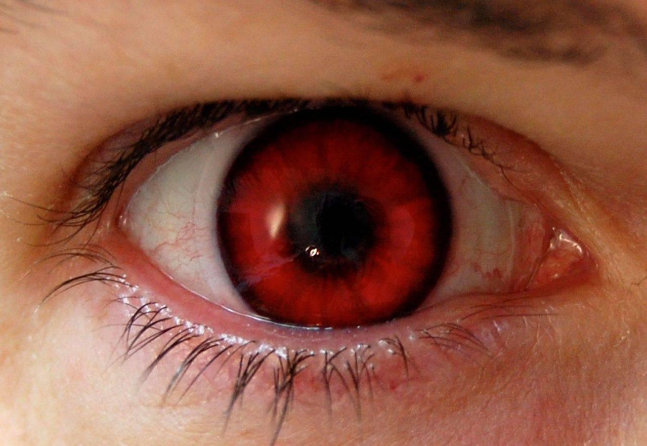 У меня краснеют глаза от линз, что делать?