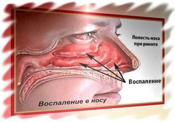Причины заложенности носа в положении лёжа