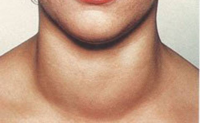 гиперплазия правой доли щитовидной железы