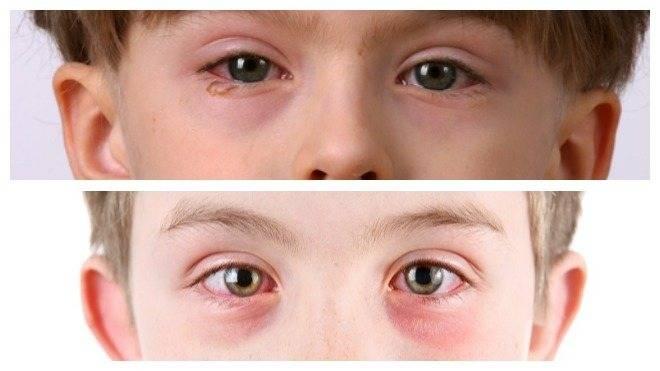 Эффективное лечение конъюнктивита у ребенка в домашних условиях