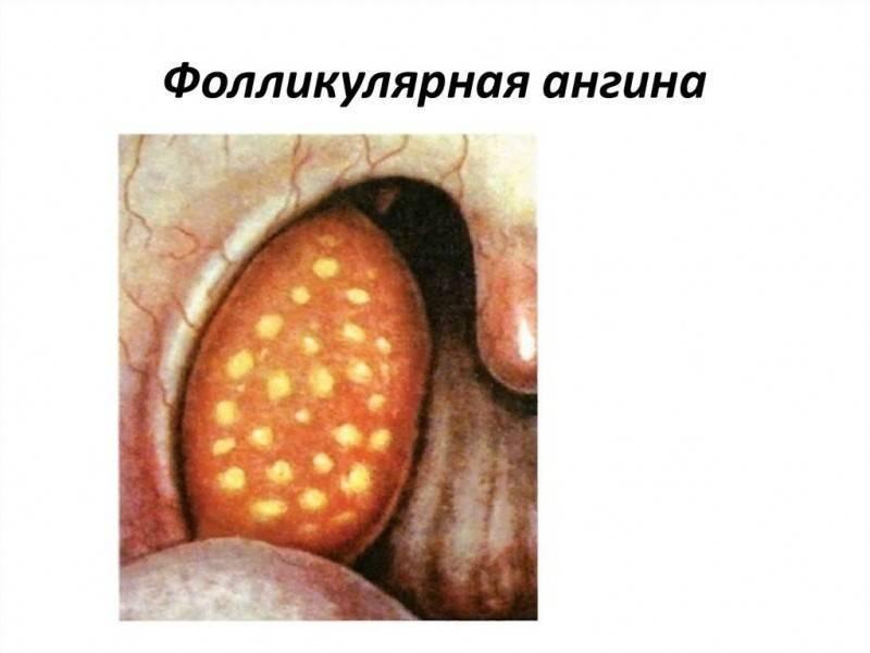 как лечить фолликулярную ангину у взрослого