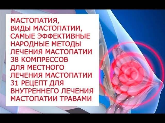 Мастопатия: лечение в домашних условиях народными средствами, рецепты которые помогли