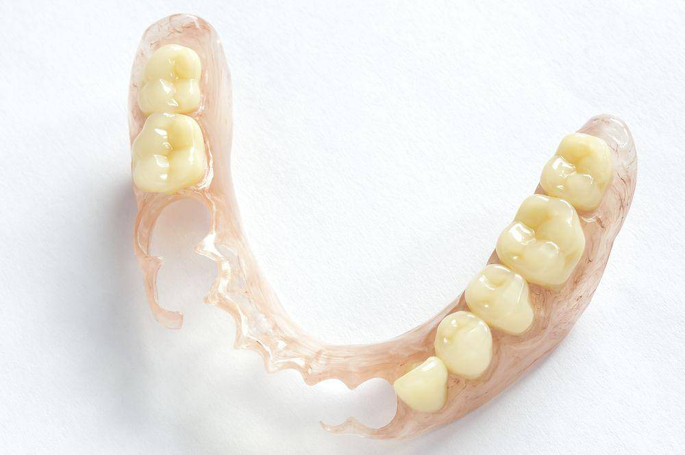 Съёмные и несъёмные зубные протезы: какие бывают и их различия по цене
