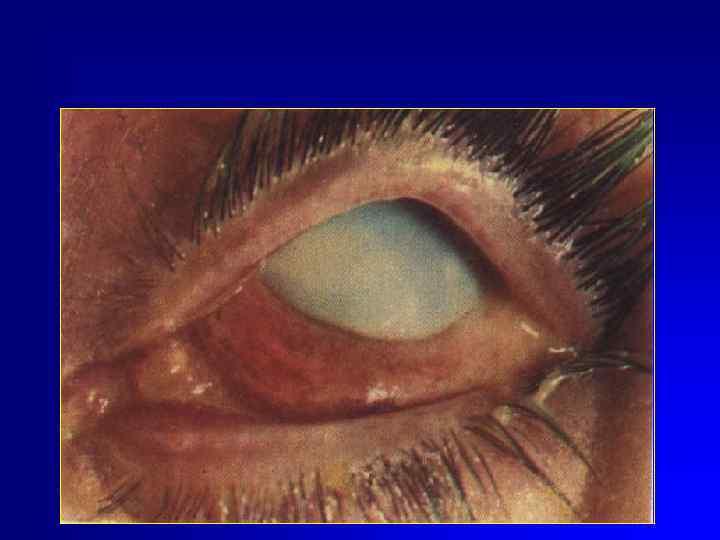 Глазные капли при химическом ожоге глаза