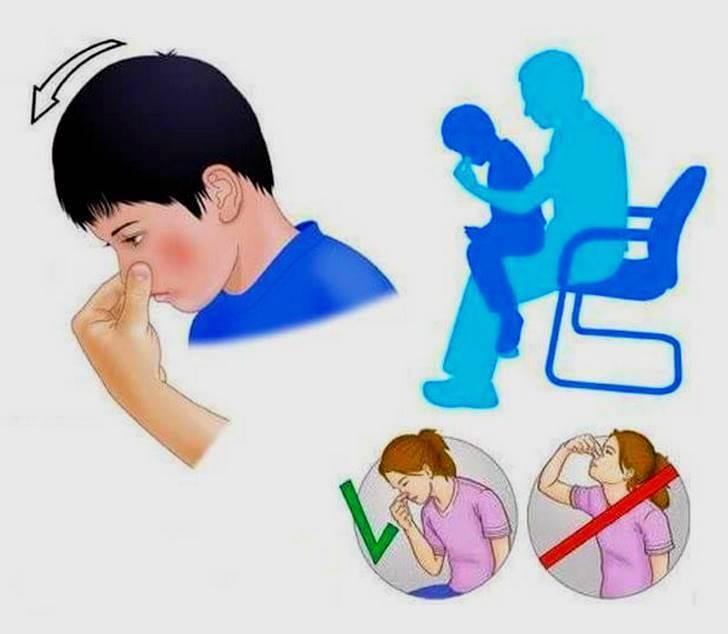 носовое кровотечение неотложная помощь