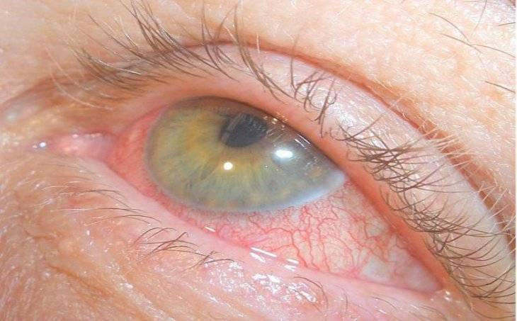 воспаление радужной оболочки глаза название