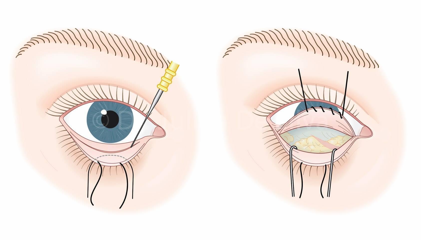 Что такое конъюнктивальный мешок глаза