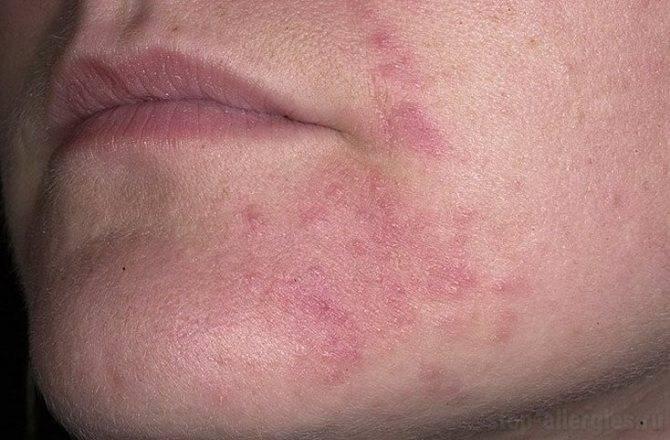 Причины появления дерматита у беременных женщин - симптомы и лечение