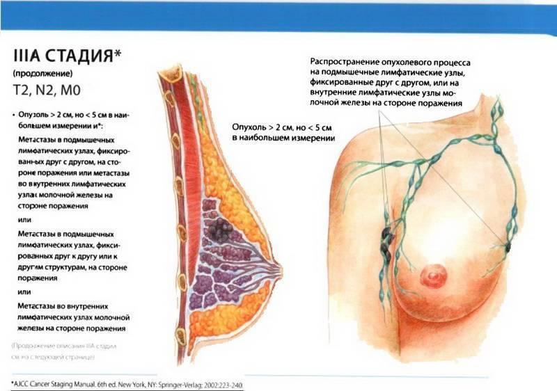 3 стадия рака молочной железы прогноз