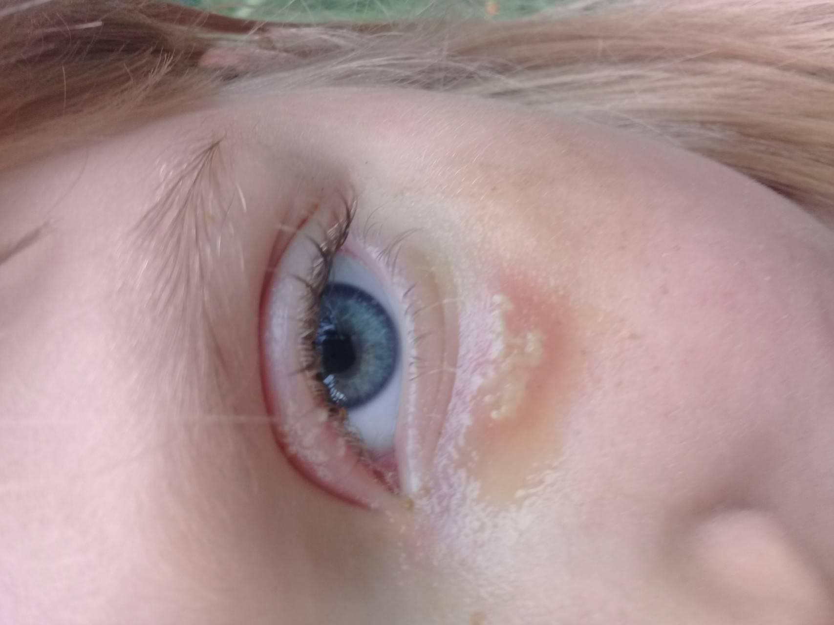 От чего болят глаза при простуде