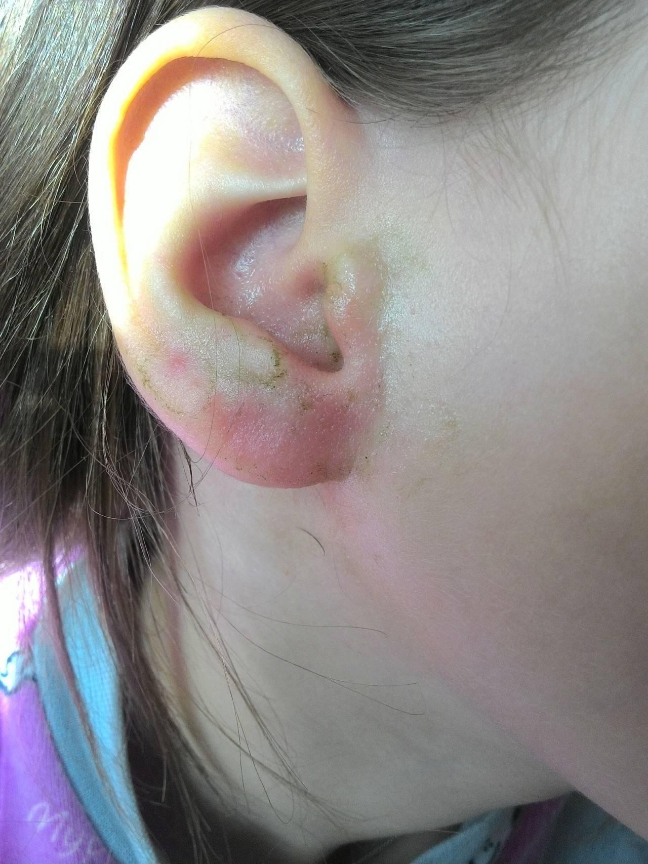 гематома ушной раковины у человека
