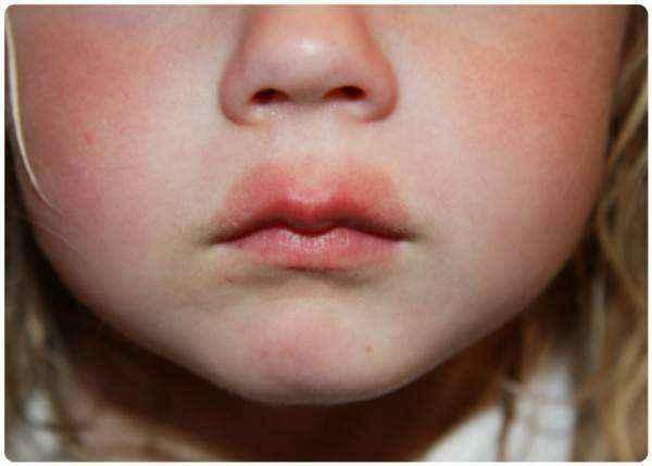Как снять отек горла у ребенка и взрослого
