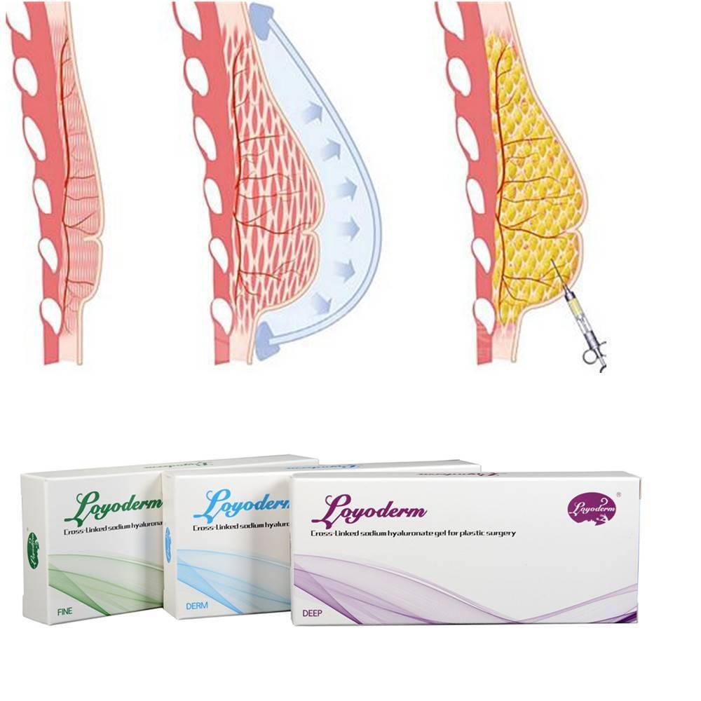 Какие оральные контрацептивы увеличивают грудь
