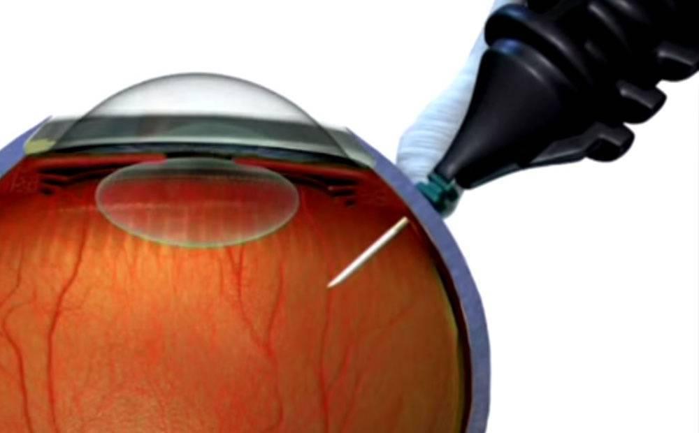 Разрыв сетчатки глаза приводит к отслойке тканей